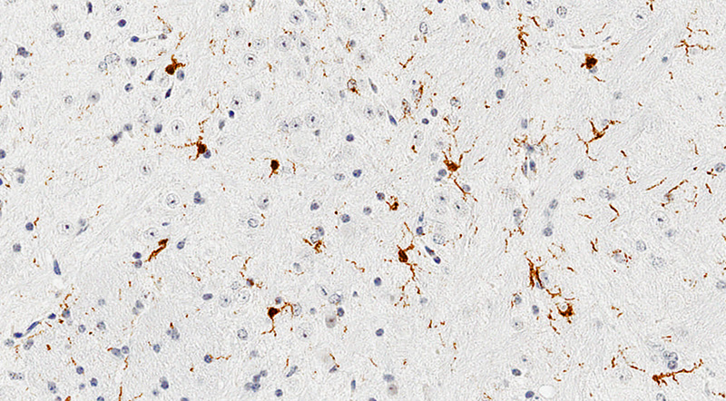 Immunostain for Iba1, Brain