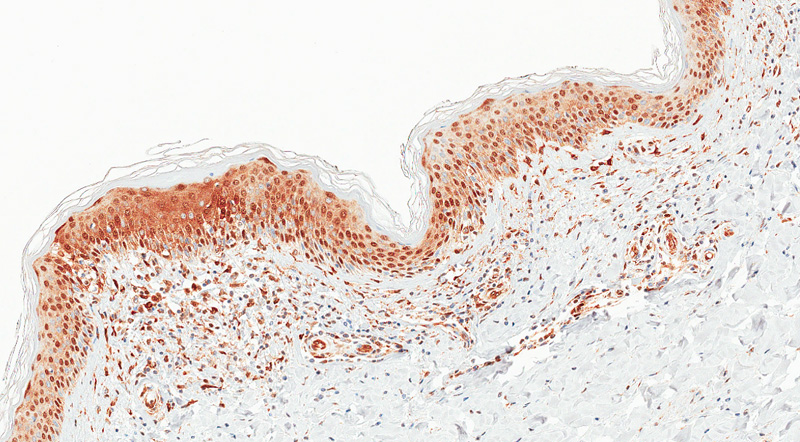 Immunostain for STAT3, Skin