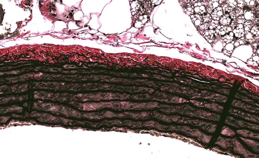 Verhoeff's Elastic Stain, Aorta