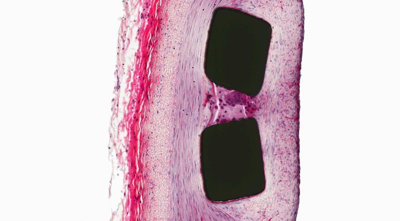 H&E, Stented Artery