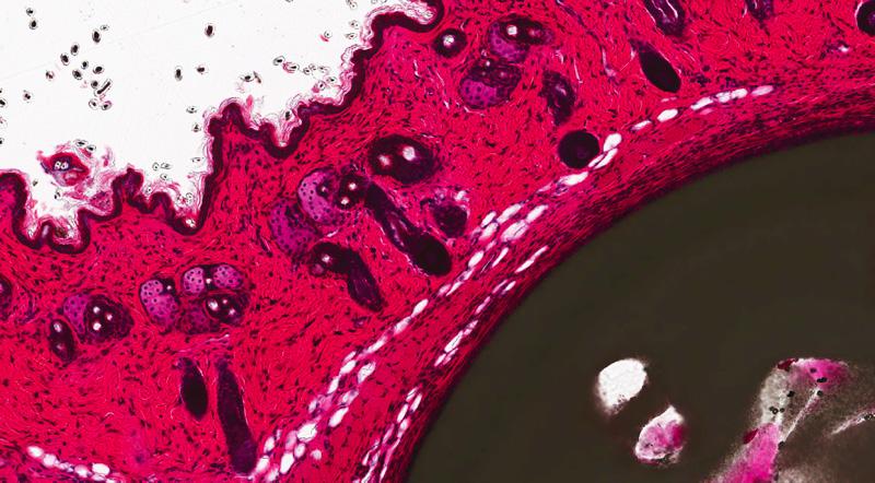 H&E, Catheter in skin