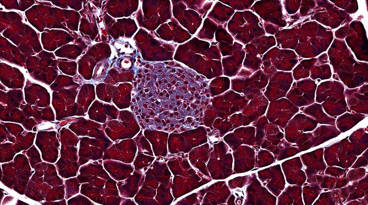 Masson's trichrome, Pancreas